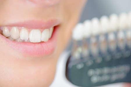 Close-up van de tanden