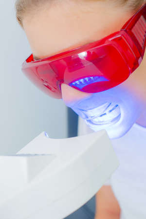 nonsurgical: Woman having her teeth whitened