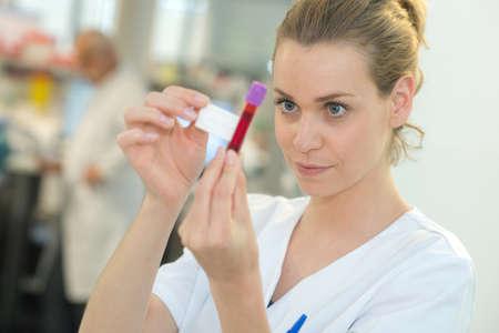 phlebotomist: nurse labeling blood in a vacuum tube