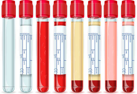 medical evaluation: Detailed illustration of a Red Cap Tube with Six Possible Uses, empty, blood, serum or plasma.
