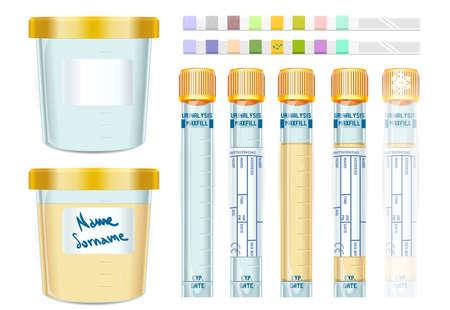 소변 검사 노란색 캡 튜브 세트, 비어있는, 채워, 고정 및 dipistick의 자세한 그림.