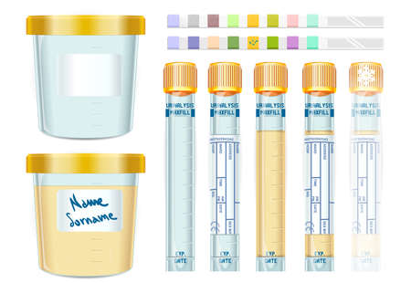specimen: Detailed illustration of a Urinalysis Yellow Cap Tubes Set, empty, filled, frozen and dipistick.