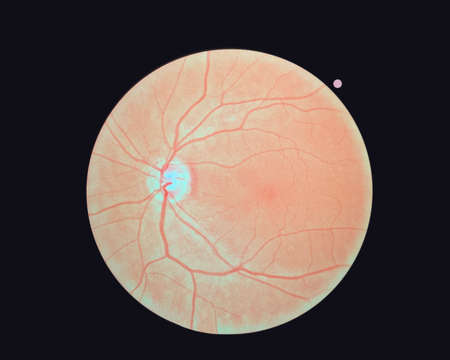 Right eye's retinal image isolated on a black background. A normal human retina.