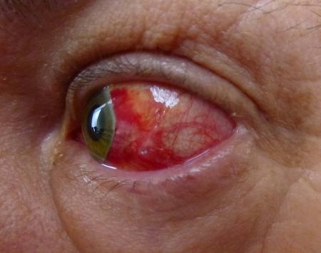 bloodshot: red bloodshot eye post surgery