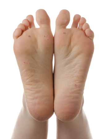 Feet with plantar warts, isolated on white . High definition image. photo