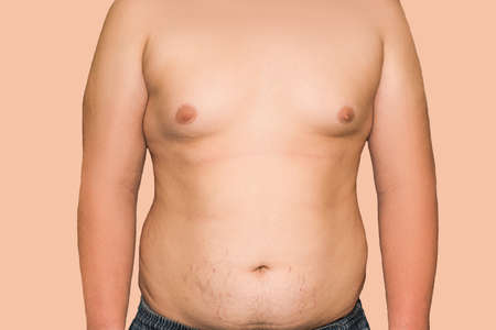 A man is overweight all over his body, on his stomach, chest, arms. Stretch marks on the abdomen in the process of losing weight.