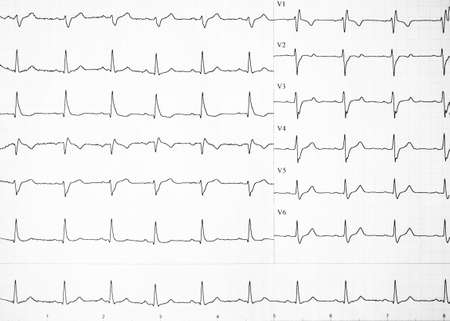 Alterations of heartbeats represented on paper. Heart rate on paper for recording an electrocardiogram, prevention of heart diseases. Electrocardiogram strips with cardiac arrhythmias. Copy space.