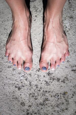 Photo of a Women's feet and legs with colored nail polish on toes, Cape Town, South Africa