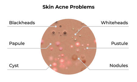 Skin acne types and face pimples for dark skin type, vector, skin care problems treatment. Skin acne dermatology and skincare beauty.