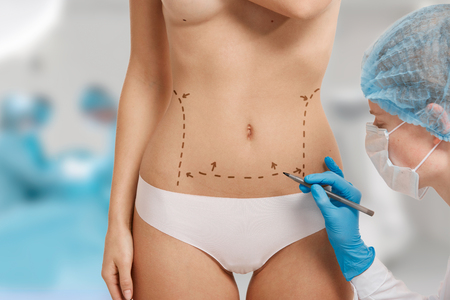 breast beauty: Plastic surgery doctor draw line on patient breast augmentation implant. Woman belly marked out for cosmetic surgery in surgery room interior