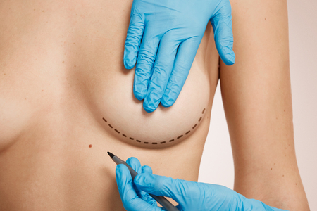 plastic surgeon: Beautiful woman with plastic surgery, depiction, plastic surgeon hands. Cosmetic surgery concept