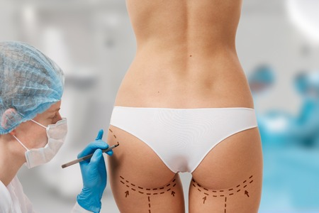 correction lines: Drawing lines on a Caucasian womans abdomen as marks for abdominal cellulite cosmetic correction surgery. Operation in the background Stock Photo