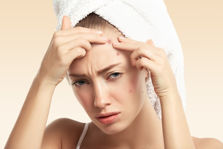 Headshot of displeased young blond woman with towel on her head, looking with painful face at the camera while squeezing pimple on her forehead. Portrait of Caucasian girl against blue wall background Stock Photo