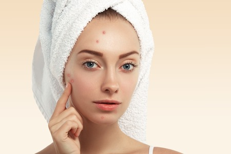 Close up shot of young Caucasian female with blue eyes and acne skin, pointing at pimple, looking at the camera while getting facial treatment in spa salon. Dermatology and problem skin concept Standard-Bild