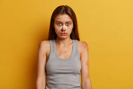 Serious girl victim of savage attack or domestic violence, has nose bleed, scratches and bruises, beaten by cruel man, suffers from abusement, being hurt, isolated on yellow. Criminal life, cruelty