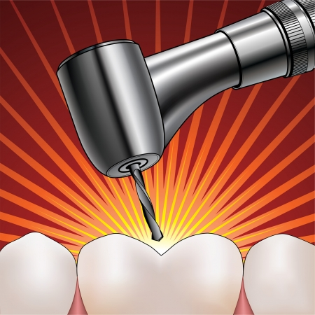 extremely: Dentist Drilling Tooth is an illustration of a shiny reflective silver dentist drill drilling an extremely painful tooth
