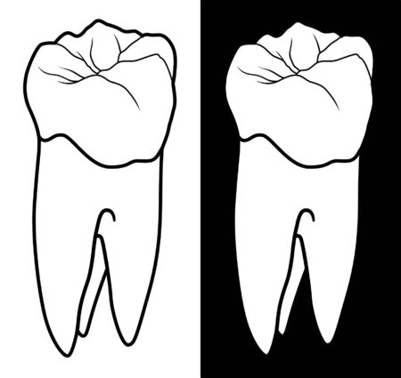 molar: Tooth With Root Graphic Style is an illustration of a human tooth or molar in a black and white graphic style