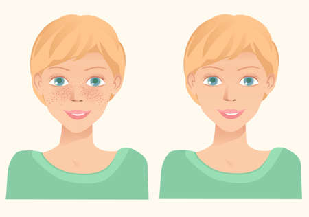 Cheerful cute young girl with freckles and same girl  without freckles. Concept for whiten skin and remove freckles, dark spots and sunspots. Vector illustration. Illustration