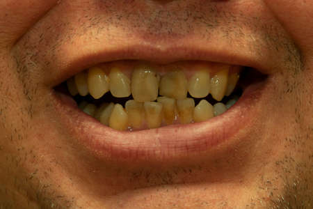 crooked teeth and malocclusion in a young man, close-up mouth Stock Photo