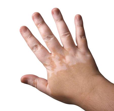 bodypart: Vitiligo