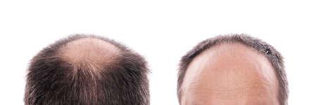 calvitie: la perte des cheveux circulaire � l'arri�re de la t�te et du recul des cheveux sur le front Banque d'images