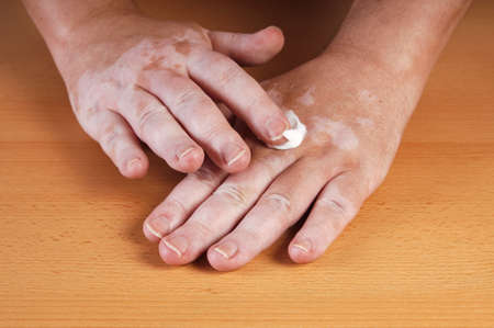 applying sunblocker or lotion to skin affected by vitiligo Stock Photo