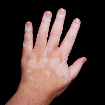 causing: Vitiligo is a medical condition causing depigmentation of patches of skin