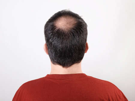 calvicie: cabeza masculina con el adelgazamiento del cabello o alopecia