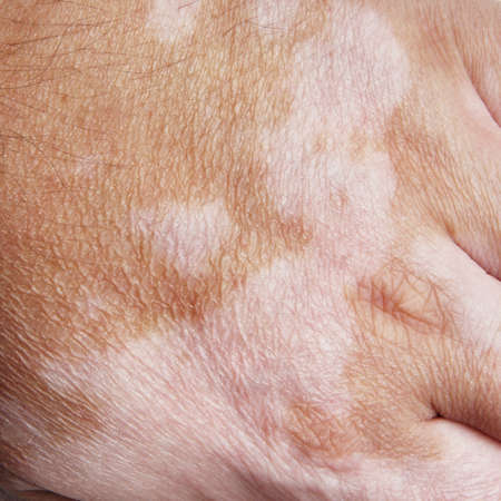 Vitiligo is a medical condition causing depigmentation of patches of skin photo