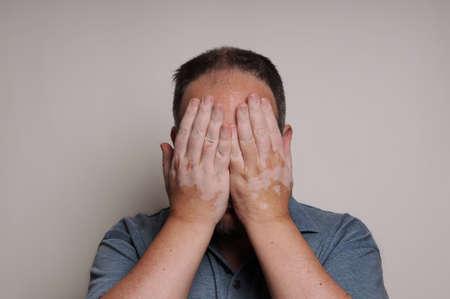 man affected by Vitiligo skin condition hiding his face Banque d'images