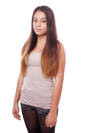 psychologic: young asian woman with scars from deliberate self-harm Stock Photo