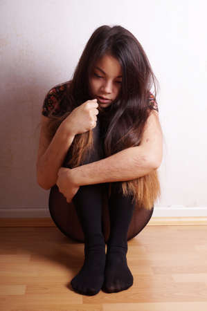 young asian woman with scars from deliberate self-harm Stock Photo