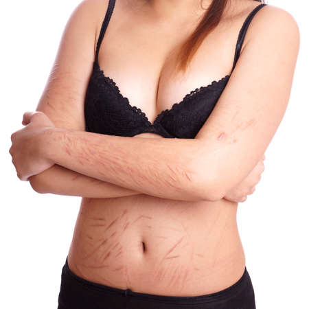 female torso with scars from deliberate self-harm Stock Photo