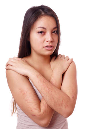 harm: crying young asian woman with self-inflicted cuts on her arms