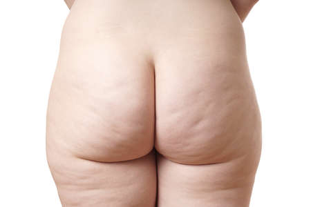 close-up of naked female buttocks with cellulite