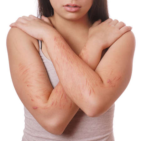 deliberate: arms with scars and cuts from deliberate self-harm