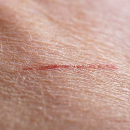 scar: close-up human skin with small cut or scratch