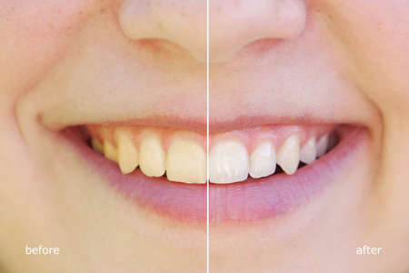 bleached: teeth whitening before and after concept. comparision between yellow and white teeth side by side.