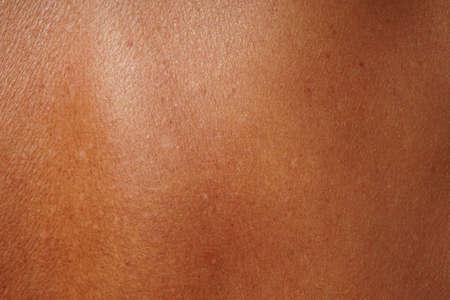 la piel humana de primer plano damged por edad y tomar el sol