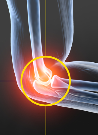 Painful elbow joint, rheumatoid arthritis, 3D illustration 版權商用圖片