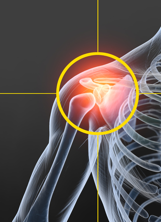 Painful shoulder joint, medically 3D illustration, osteoarthritis 版權商用圖片