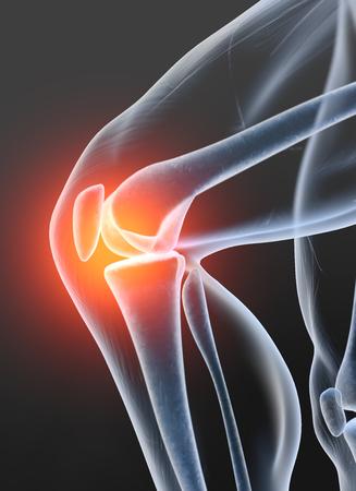 Schmerzhaftes Kniegelenk, medizinisch 3D-Darstellung, Arthrose