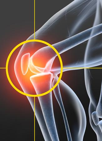 Painful knee joint, medically 3D illustration, osteoarthritis Banco de Imagens