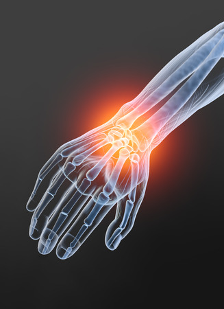 Painful wrist, medically 3D illustration, osteoarthritis Banque d'images - 117267189