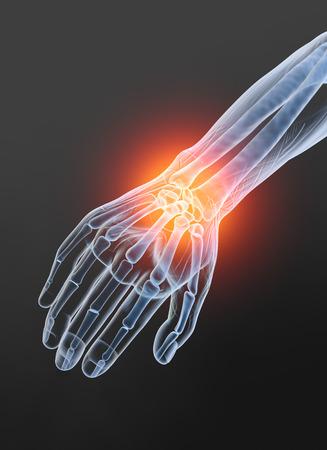 Painful wrist, medically 3D illustration, osteoarthritis Stock Photo