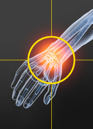 Painful wrist, medically 3D illustration, osteoarthritis, arthritis Banque d'images - 117267194