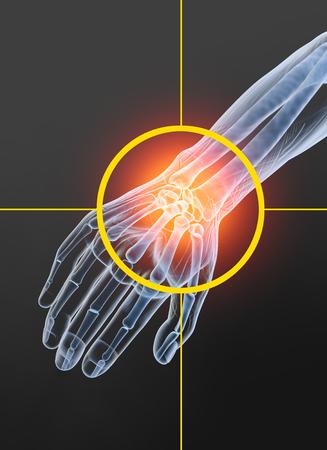 Painful wrist, medically 3D illustration, osteoarthritis, arthritis Stock Photo