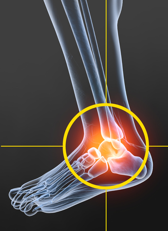 Painful ankle, medically 3D illustration, osteoarthritis Stock Photo