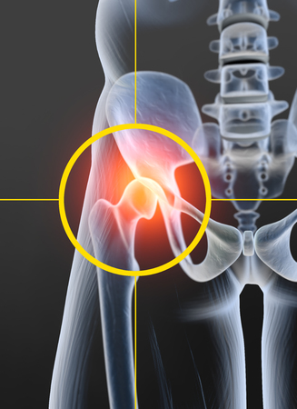 Painful hip joint, medically 3D illustration, osteoarthritis