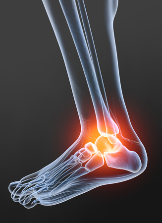 Painful ankle, medically 3D illustration, osteoarthritis Standard-Bild
